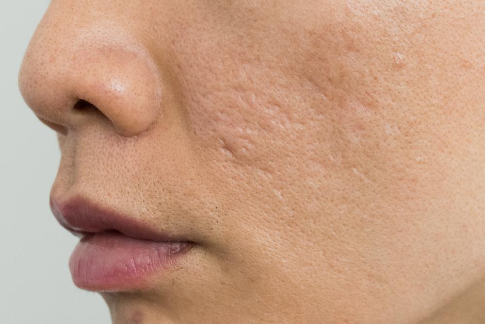acne scar treatment in Preston