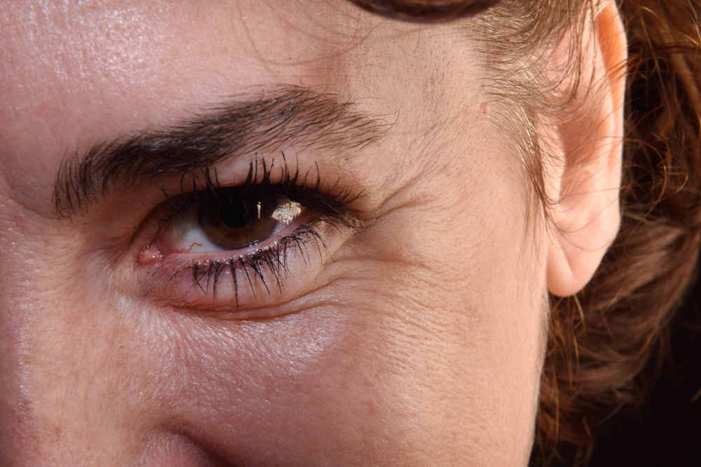 crows feet and wrinkles on eyes