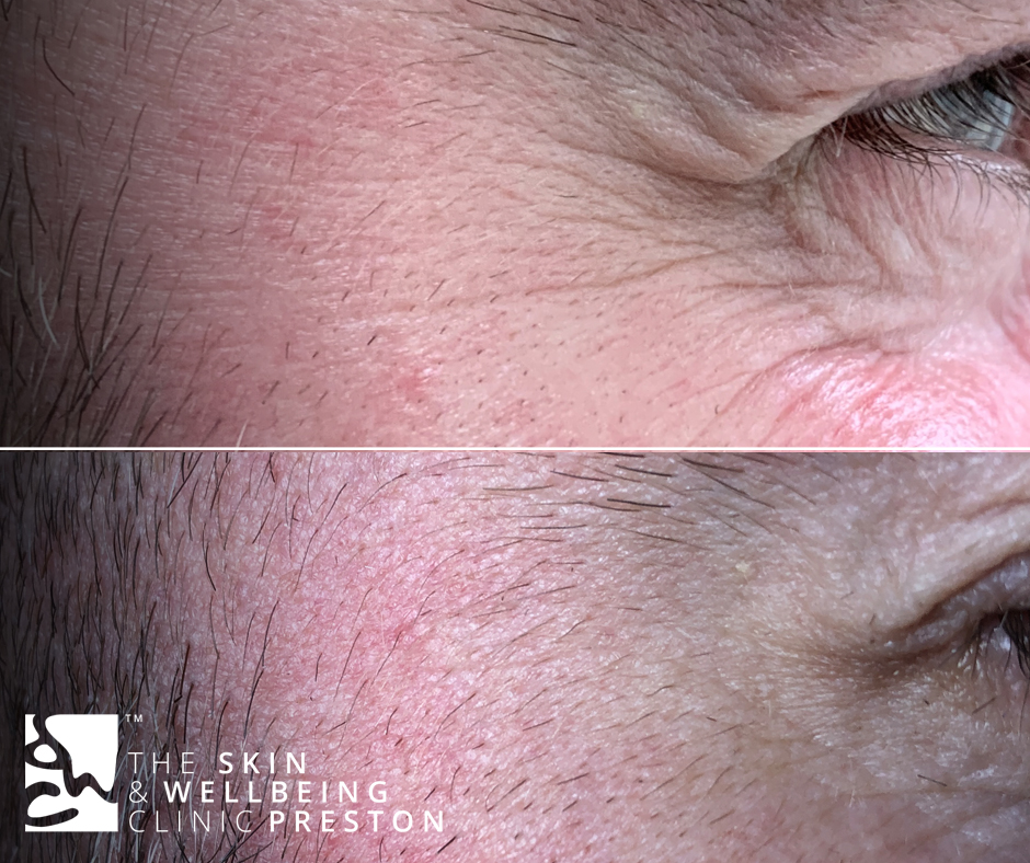 crows feet reduction botox
