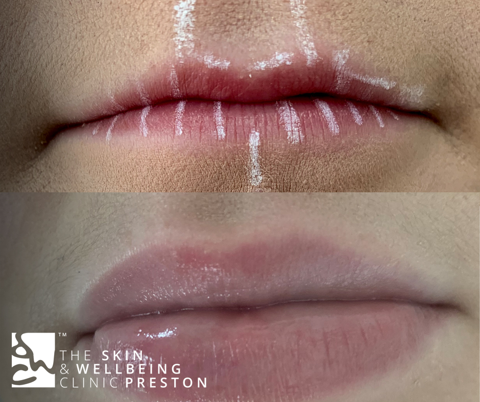 lip fillers 2 treatments