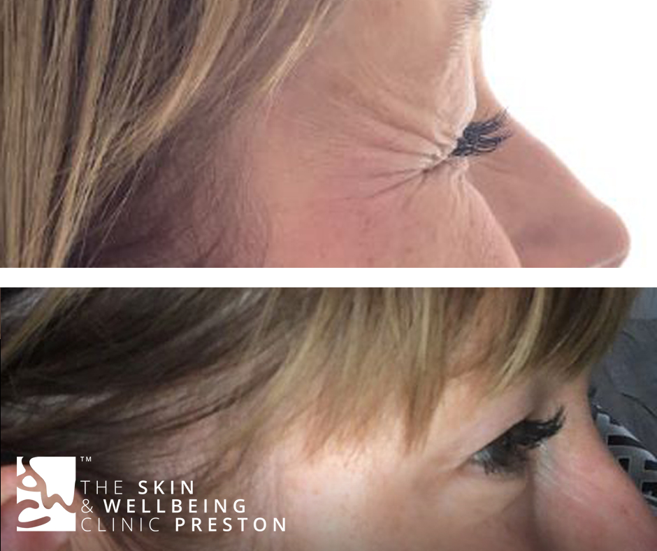 crows feet botox injection in Preston