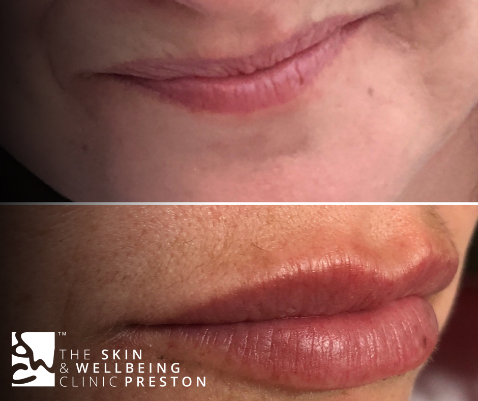 lip fillers from our Preston clinic