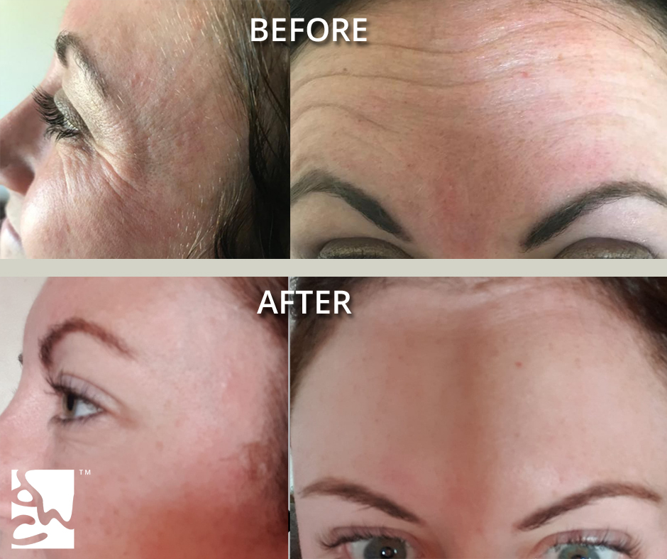 crows feet and brow anti wrinkle injections