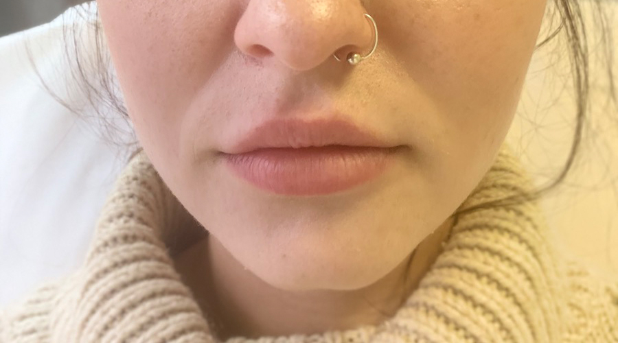 lip fillers before and after - before portrait