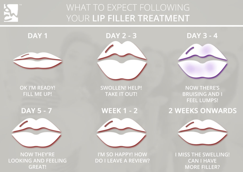 what happens after lip fillers - lip filler timeline