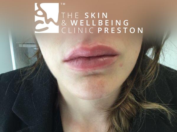 after lip enhancment